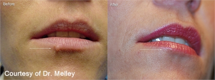 Benign Skin Lesions Before and After