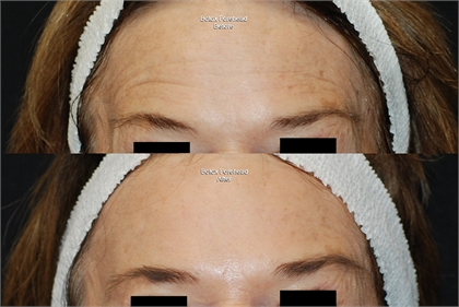 BOTOX® Cosmetic Before and After