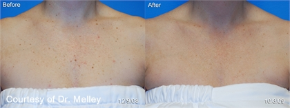 Age Spots and Sun Damage Before and After