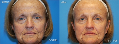 Skin Rejuvenation Before and After