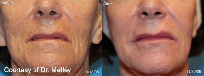 Juvederm Injectable Gel Before and After