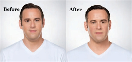 Kybella® Before and After
