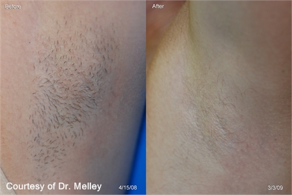 Unwanted Hair Before and After