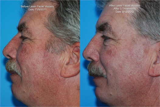 Facial Vessels Before and After